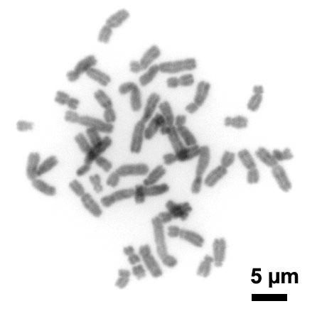 humanchromosomeschromomycina3